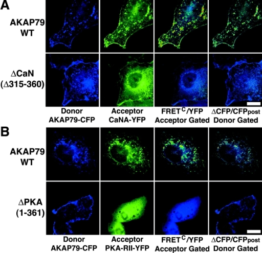 Confirmation of micro-FRET detection of AKAP79 binding to CaN and PKA by YFP acceptor photobleaching imaging of FRET CFP donor quenching in fixed COS7 cells. (A) Membrane colocalization of AKAP79–CFP (blue) and CaNA–YFP (green) with micro-FRETC (pseudo-color/gated to YFP [blue underlay]), and relief of FRET CFP donor quenching by YFP acceptor photobleaching (ΔCFP pseudo-color/gated to CFPpost [blue underlay]) observed for AKAP79WT (top) but not ΔCaN (Δ315–360) (bottom). B) Membrane colocalization of AKAP79–CFP (blue) and PKA-RII–YFP (green) with micro-FRETC (pseudo-color/gated to YFP [blue underlay]) and relief of FRET CFP donor quenching by YFP photobleaching (ΔCFP pseudo-color/gated to CFPpost [blue underlay]) observed for AKAP79WT (top) but not ΔPKA (1–361) (bottom). Bars, ∼15 μm.