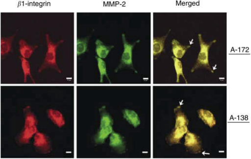 Double immunofluorescence staining of β1-integrin plus MMP-2 in A-172 and U-138 cells. β1-integrin and MMP-2 were visualised by confocal scanning microscopy after fixing and staining of cells with the appropriate antibodies. Arrows indicate β1-integrin plus MMP-2 colocalisation within focal adhesion sites in the cell membrane. Bar, 10 μm.