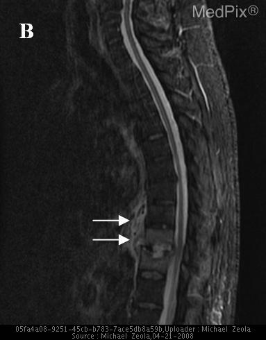 Increased signal intensity from inferior T10 to superior T11 with soft tissue hyperintensity and loss of disc height in the T10-T11 intervertebral space with associated cord compression.