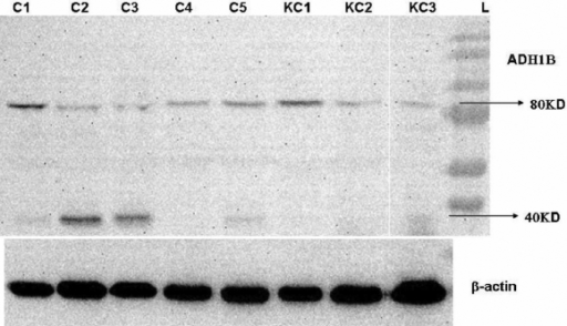 Protein expression of 80 kDa dimer and 40 kDa monomer subunits of alcohol dehydrogenase in cultured corneal fibroblasts. C1-C5 are normal corneal fibroblast cell lines, and K1–K3 are keratoconus corneal fibroblast cell lines.