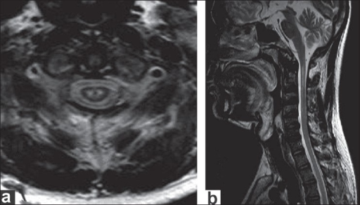 (a) Axial T2-weighted image at C1 vertebral level showing two focal T2