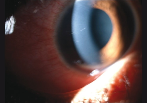 Retained intracorneal setae, tangential to the corneal curvature, with minimal surrounding congestion