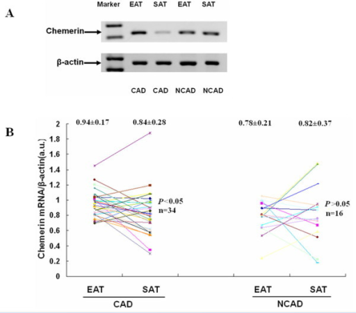 The mRNA expression level of chemerin between EAT and SAT. (A): the result of agarose gel electrophoresis of PCR products in EAT and SAT. (B): the scattered graph of relative mRNA levels of chemerin in EAT and SAT of the two groups (CAD group, n = 34; NCAD group, n = 16).