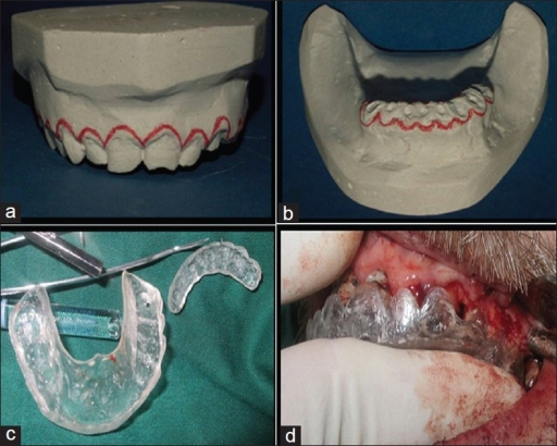 Crown Lengthening Procedure A B Maxillary And Mand