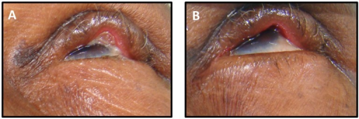 Photographs of an eyelid with an eyelid contour abnormality A) before and B) after granuloma excision.