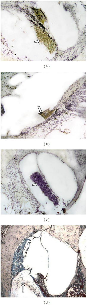 (a, b) Vertical slices of cochlea in Group A (20 × 10); clumps of cells colored brown in scala tympani could be seen, indicating positive enzyme reactions. The lips of the osseous spiral lamina also showed positive staining (indicated by the arrow). (c) Vertical slice of cochlea from a guinea pig in Group B (10 × 10); clumps of cells were seen in scala tympani (indicated by the arrow). Neither the clumps of cells nor any other parts of the inner ear were stained brown. (d) Vertical slice of cochlea from a guinea pig in Group C; brown staining was not seen. Scattered blood cells in scala tympani were a result of the bleeding during the injection (indicated by the arrow).