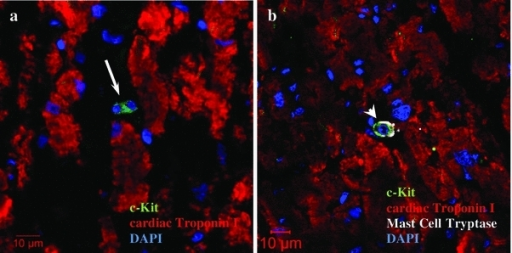 Identification of c-Kit+ cells in human heart. a The arrow indicates c-Kit+ (green fluorescence) progenitor cardiac cells, b the arrowhead indicates c-Kit+ (green fluorescence) tryptase+ (white fluorescence) mast cells. A few c-Kit+ tryptase− cells were observed in the human cardiac tissue sections