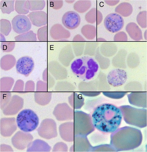 Images ofPolychromophilus murinusgametocytes inMyotis daubentoniierythrocytes. (A-D) Different maturation stages of a gametocyte; (E) Mature male, microgametocyte with leucocyte; (F) Mature female, macrogametocyte; (G) Mature female, macrogametocyte, phase-contrast filter. Images A-F 600x magnification, image G 1000x magnification.