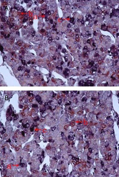Co-expression of aquaporin 4 (AQP4) and adrenocorticotropic hormone (ACTH) in pituitary cells at 6 hours after blast-induced craniocerebral injury (immunohistochemical double-labeling; × 400).Arrow a shows AQP4 expression. AQP4 was mainly expressed in the membrane and cytoplasm of some cells. Arrow b shows ACTH expression. ACTH was expressed in the cytoplasm of corticotrophs. Arrow c shows AQP4 and ACTH co-expression.(A) Untreated blast injury group.(B) Hyperbaric oxygen group.