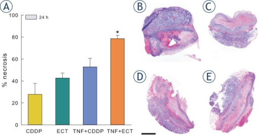 Percentage of necrosis in tumours 24 h after different treatments. (A) Increased percentage of necrotic tumour area was observed 24 h after treatment with combination of TNF-α and electrochemotherapy. (B–E) Haematoxylin and eosin staining of tumour sections in tumours 24 h after different treatments at 4× magnification. (B) – CDDP; (C) – electrochemotherapy; (D) – TNF-α and CDDP; (E) – TNF-α and electrochemotherapy. Scale bar 1 mm. Bars represent mean ± SEM. * p<0.05 vs. CDDP, ECT, and TNF + CDDP.