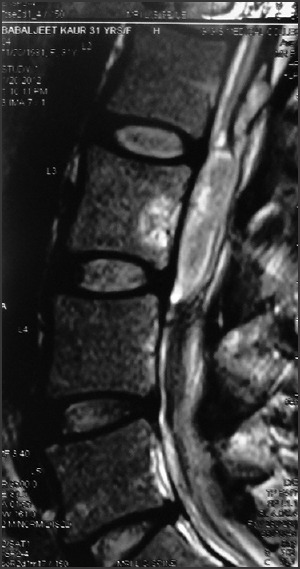 Collection in anterior epidural space at L3 level with edema in L3 vertebral body