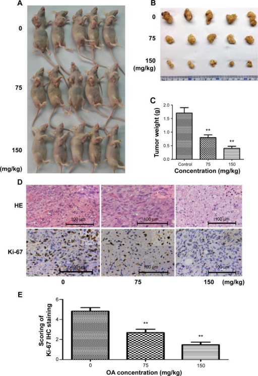 Oleanolic acid exhibits an anticancer effect in vivo.Notes: (A) NOZ cells were subcutaneously injected into the right flank of nude mice. The mice were then administered 0.2 mL of vehicle (10% dimethyl sulfoxide and 90% phosphate-buffered saline) or OA (75, 150 mg/kg) intraperitoneally every 2 days for up to 15 days. Photographs of five representative mice (n=10) from each group are presented to show the sizes of the resulting tumors. (B, C) Tumors were excised from the animals and weighed. (D) Hematoxylineosin staining and IHC staining of Ki-67 in xenograft tumors. (E) Scoring of Ki-67 IHC staining. **P<0.01 versus the control group.Abbreviations: OA, oleanolic acid; HE, hematoxylineosin; IHC, immunohistochemistry.