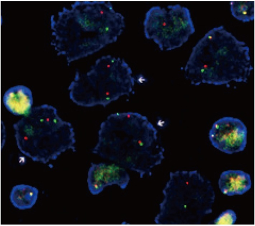 Fluorescence in situ hybridization (FISH) of anaplastic lymphoma kinase (ALK)-rearranged pulmonary adenocarcinoma. Rearranged tumor nuclei show split signals (arrows) of 3´ (orange color) and 5´ (green color) ends of the gene hybridized using a dualcolor ALK break-apart FISH probe (Vysis LSI ALK Dual Color, Break Apart Rearrangement Probe, Abbott Molecular).