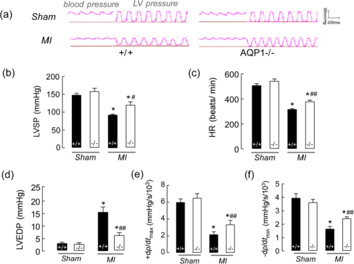 The effects of AQP1 deficiency on cardiac contractile function following MI.(a) A representative tracing of LV hemodynamic recordings obtained in vivo using a conductance catheter in both the sham-operated mice and both the AQP1−/− and AQP1+/+ mice at 18 hours following MI. (b) The LV systolic pressures (LVSPs) (n = 12), heart rates (HRs) (n = 12) (c), LV end-diastolic pressures (LVEDPs) (n = 12) (d) and maximal positive (e) and minimal negative (f) first derivatives of LV pressure (+dP/dtmax and –dP/dtmin) (n = 12). The values are expressed as the mean ± SEM. *P < 0.01 vs sham; #P < 0.05, ##P < 0.01 vs AQP1+/+ MI mice.