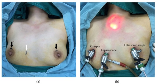(a) Two incisions for the main and auxiliary operation ports (black arrow); the incision for laparoscope (white arrow); (b) external view after positioning the trocars.