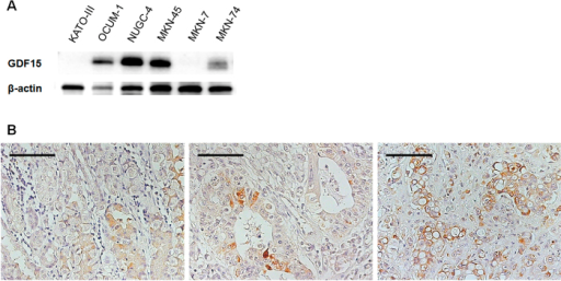 GDF15 protein expression of gastric cancer cell lines and tissues.(A) GDF15 protein expression of the six gastric cancer cell lines. KATO-III, OCUM-1, NUGC-4, and MKN-45 belonged to the diffuse-type and MKN-7 and MKN-74 represented the intestinal-type. (B) GDF15 protein expression of gastric cancer tissues. Left, gastritis (benign); center, intestinal-type gastric cancer (malignant); right, diffuse-type gastric cancer (signet ring cell carcinoma, malignant). Bars indicate 100 μm.