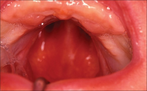 Hard palate width before soft palate repair