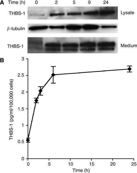 Upregulation of thrombospondin-1 by dexrazoxane in vitro. (A) Western blotting of HUVEC whole cell lysate and medium after treatment with 50 μ Dexrazoxane for 2, 5, 9 and 24 h displayed an increase in THBS-1 protein expression over the time course. (B) This result was confirmed by ELISA using conditioned medium of cells treated with Dexrazoxane at different time points.
