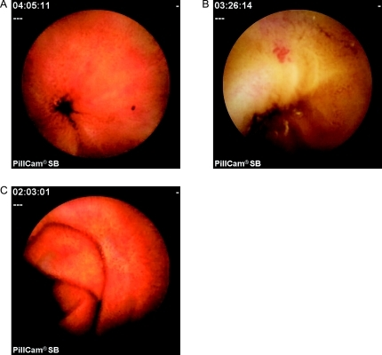 Capsule endoscopic views of the vascular lesions of portal hypertensive enteropathy. A: Red spot. B: Angioectasia. C: Serpiginous small bowel varix.