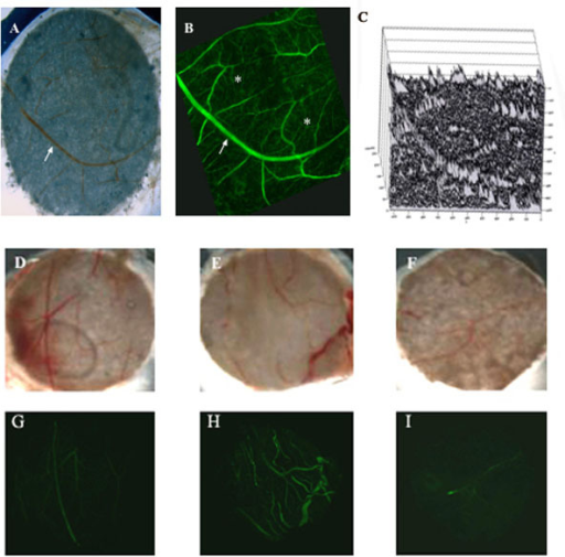 Fluorescent confocal microscopy imaging in the CAM. (A) Representative photomicrograph of a harvested CAM disk showing one large parent vessel (arrow) and a few tributaries. (B) Same CAM disk viewed under the Zeiss LSM 5 Pascal confocal fluorescent microscope using the FITC filter at 488 nm following an injection of FITC-dextran showing large parent vessel (arrow) as well as many additional branches (asterisks) not visible under photo microscopy. (C) Using a topogram of each fluorescent confocal image, pixel intensity was measured by the Pascal imaging software (Version 2.8 SP1). Images were filtered to remove low level background and large parent vessel interference so that only new blood vessel formation fluorescent vascular density was measured. (D-F) Day 10 eggs (N = 10–12 eggs per group) were divided into three groups and received filter disks saturated with vehicle (0.1% BSA/PBS) solution and systemic injection of carrier (0.1% DMSO) solution (D) or bFGF filter disks and systemic injection of carrier solution (E) or systemic fumagillin (F). Photomicrographs of CAM disks were given to three blinded graders (representative photomicrographs of one CAM disk from each treatment group shown) and scored for vascularization according to the standard 0–4 grading scale [7,8]. (G-I) Same CAM disks as in D-F (above) after systemic injection with FITC-dextran.
