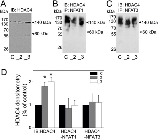 The interaction of NFAT1 and NFAT3 with HDAC4 isoform in PMCA2- or PMCA3-deficient PC12 cells.RIPA-total cellular extracts were subjected to immunoblotting to verify HDAC4 protein content and served as inputs of immunoprecipitation (A). The cellular extracts (inputs) were incubated with protein A/G agarose beads and with anti-NFAT1 antibody (B) or with anti-NFAT3 antibody (C) and the obtained immunoprecipitates were subjected to immunoblotting for HDAC4. All immunoblots and immunoprecipitates were measured densitometrically and expressed as % of control cells (D). Student's t-test was used for comparison of control cells with PMCA2- or PMCA3- deficient cells. *P≤0.05, n = 3. Symbols: control cells (C), PMCA2-deficient cells (_2), PMCA3-deficient cells (_3).