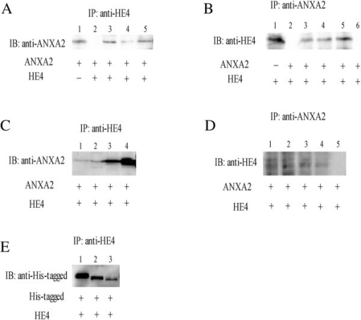 Interaction of HE4 and recombinant annexin II proteins. A, immunoprecipitation (IP) of annexin II/HE4 complex by anti-HE4 antibody and Western blot analysis with anti-annexin II antibody. Lanes 1and 2, control proteins; lanes 3, 4 and 5, IP by anti-HE4 antibody in ovarian cancer cells OVCAR-3, ES-2, CaoV-3. IB, immunoblotting. B, immunoprecipitation of annexin II/ HE4 complex by anti-annexin II antibody and Western blot analysis with anti- HE4 antibody. Lanes 1 and 2, control proteins; lanes 3, 4 and 5, IP by anti-annexin II antibody in ovarian cancer cells OVCAR-3, ES-2, CaoV-3. Lane6, negative control (Ig G). C, IP of membrane and cytoplasmic proteins by anti-HE4 antibody and Western blot analysis with anti-annexin II antibody. Lanes 1 and 2, membrane proteins of ovarian cancer cells ES-2 and CaoV-3. Lanes 3 and 4, cytoplasmic proteins of ES-2 and CaoV-3. D, IP of membrane and cytoplasmic proteins by anti-annexin II antibody and Western blot analysis with anti-HE4 antibody. Lanes 1 and 2, membrane proteins of ovarian cancer cells ES-2 and CaoV-3. Lanes 3 and 4, cytoplasmic proteins of ES-2 and CaoV-3. Lane 5, negative control (Ig G). E, binding of truncated annexin II mutants, A2-del15 and A2-del26, to GST-HE4. Complexes were immunoprecipitated by anti-HE4 antibody , followed by Western blot analysis with anti-His-tagged antibody. Full-size annexin II was used in lanes 1, A2-del15 was used in lanes 2, and A2-del26 was used in lanes 3. All the plus sign under the panel mean antibodies used.
