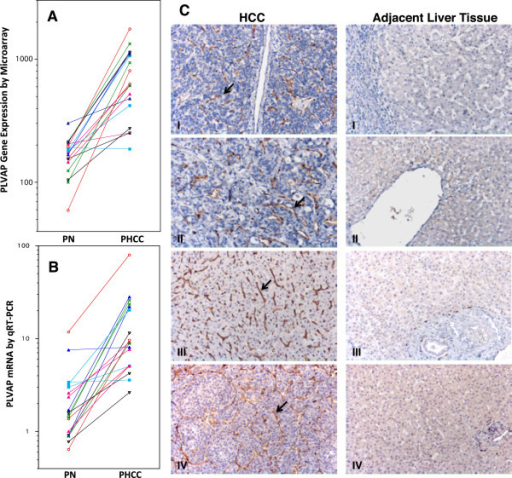 Differential expression of PLVAP between paired HCC tissue and adjacent non-tumorous liver tissue. A: Differential expression of the PLVAP gene according to microarrays of 18 pairs of HCC and adjacent non-tumorous liver tissue. PN: paired non-tumorous liver; PHCC: paired HCC tissue. B: Relative quantities of PLVAP mRNA in the same 18 tissue pairs. One non-tumorous liver tissue sample was chosen as a reference control (relative quantitative expression = 1). C: Immunohistochemical (IHC) staining of PLVAP in four randomly selected HCC cases. IHC staining was performed using GY5 murine anti-human PLVAP monoclonal antibody. Endothelial cells lining blood vessels of HCC showed positive staining for PLVAP in brown color (arrows). IHC staining (panel C) showed that PLVAP was not expressed by the endothelial cells of hepatic central vein (C-II right panel), hepatic sinusoid (CI-IV right panels), and hepatic arterioles (portal tract) (C-III right panel) in the adjacent non-tumorouse liver tissues. The large empty space in the right panel of C-II was lumen of a hepatic central vein which showed absence of PLVAP expression in the lining endothelial cells. We also stained HCC sections including adjacent non-tumorous liver with anti-human CD34 monoclonal antibody. Endothelial cells of hepatic central vein and hepatic areteriole were stained positively for CD34 expression (data not shown). Liver sinusoidal endothelial cells did not express CD34 as expected.