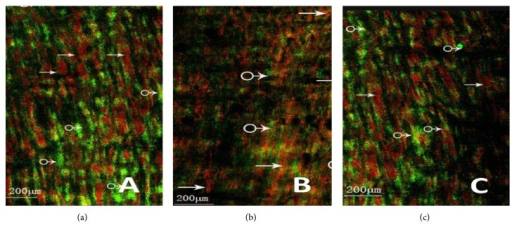 Cholinergic nerves-ICC network using confocal microscopy. (a) It shows cholinergic nerves-ICC network of control group (→: nerve fiber, ♂: ICC (ruler: 200 μm); (b) it shows cholinergic nerves-ICC network of MODS group (→: nerve fiber, ♂: ICC). Nerve fibers and ICC were significantly reduced and the nerves-ICC network integrity was damaged (ruler: 200 μm); (c) it shows cholinergic nerves-ICC network of DCQD group (→: nerve fiber, ♂: ICC). Nerve fibers and neuronal connections were more than MODS group, maintaining net structure (ruler: 200 μm).
