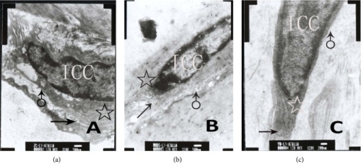 Ultrastructures of ICC-DMP using conventional electron microscopy. (a) Control group shows there were abundant mitochondria (☆), smooth endoplasmic reticulum, well-developed Golgi apparatus (↑), and intact basal membrane (♂) (ruler: 500 nm); (b) MODS group shows nucleus shriveled and the number of organelles decreased significantly. Also, mitochondria (☆) were distorting and swelling, and Golgi apparatus (↑) was damaged. Moreover, basal membrane (♂) was incomplete (ruler: 500 nm); (c) DCQD group shows nucleus was normal. Also, mitochondria (☆) and Golgi apparatus (↑) were more than MODS group. Only a few mitochondria were swelling and a few endoplasmic reticula were dilated. Moreover, basal membrane (♂) was almost complete (ruler: 200 nm).
