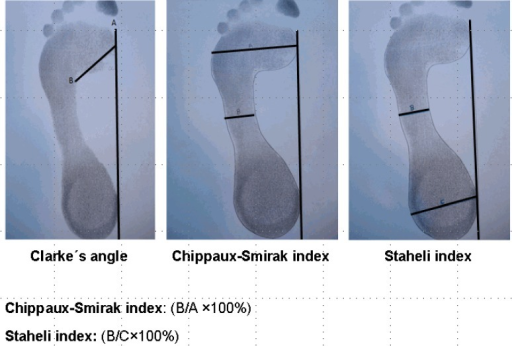 Measurement of Clarke's angle, the Chippaux-Smirak index, and the Staheli index