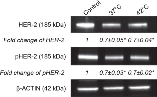 Degradation and Dephosphorylation of HER-2 receptors by Herceptin®. 4×105 BT-474 cells were seeded in a 6-well plate and treated with Herceptin® (50 μg/mL) for 6 days. Immunoblots of protein lysates were analyzed for total and phosphorylated HER-2 receptors. Representative immunoblots of one experiment out of three independent experiments are shown. The number at the bottom of each lane indicates the relative fold change versus the control after normalization with the β-ACTIN signal. Data expressed as mean ± SD calculated from three independent experiments. Statistical analysis was performed using the non-parametric Mann-Whitney test. Significance was defined as p < 0.05 (NS, non-significant; *p < 0.05 compared to the positive condition).