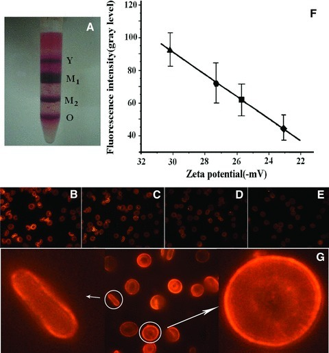 RBCs fractionated by Percoll and the collinear relation between the fluorescent intensities and ζ-potentials of the cells in the fractions. (A) The four fractions of RBCs; their fluorescence images from QDs bound to Y-RBCs (B), M1 (C), M2 (D) and O-RBCs (E), respectively. (F) The collinear relation between the fluorescent intensities and ζ-potentials of the cells. (G) The enlarged images of QD-labelled Y-RBC. The error bars in (F) indicate the uncertainties of the measurements. The data were averaged from the results of the blood samples of 32 volunteers (20 males, 12 females). In ζ-potential measurement, each sample was measured four to five times. In QD fluorescent intensity measurements, each cell was measured at four to five random points; at least 50 cells were measured for each sample.