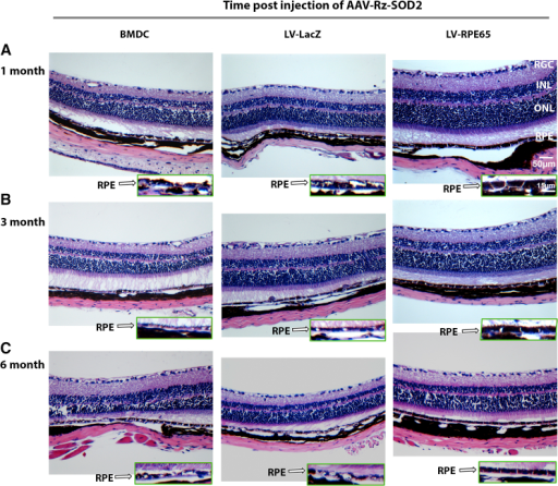 SOD2-KD Mice Treated with RPE65-Programmed BMDCs Show Improved Retinal Morphology(A–C) C57BL6/J mice received subretinal injection of AAV1-Rz-SOD2 or AAV1-Rz-inactive 1 month (A), 3 months (B), or 6 months (C) prior to tail vein injections of naive BMDCs, LV-LacZ, or LV-RPE65. Histology was assessed 3 months after systemic delivery of BMDC. Photomicrographs are representative of 10 μM cross-sections of the retina/choroid/sclera stained with H&E. Inserts show higher power images of the RPE layer. It is evident that systemic administration of RPE65-programmed BMDCs shows normal retinal thickness and near normal RPE morphology, which is not apparent in eyes receiving either naive BMDCs or LV-LacZ. RGC, retinal ganglion cell layer; INL, inner nuclear layer; ONL, outer nuclear layer.