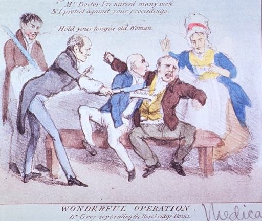 <p>Two men, joined as if conjoined twins, are about to be separated by a man yielding a knife.  A nurse rushes forward to lend assistance, and another man stands to the side holding a surgical saw.</p>