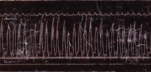 <p>An early electrocardiograph showing the effect of an injection of strophanthin.</p>