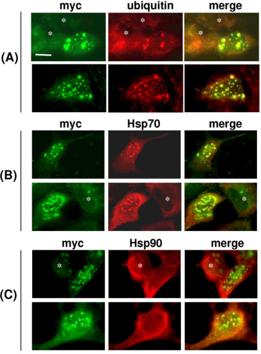 Localization of ubiquitin and Hsp70 in Rab24(D123I)-induced inclusions. HEK293 cells expressing mycRab24(D123I) were processed for immunofluorescence microscopy 24 h after transfection. In all panels, the myc-tagged Rab protein was detected with polyclonal antibody against the myc epitope followed by FITC-conjugated GAR IgG. Cells were co-stained with mouse monoclonal antibodies against (A) ubiquitin, (B) Hsp70/Hsc70 or (C) Hsp90, followed by rhodamine-conjugated GAM IgG. Non-transfected cells (no myc staining above background) are marked with asterisks in each panel. The bar represents 10 microns.