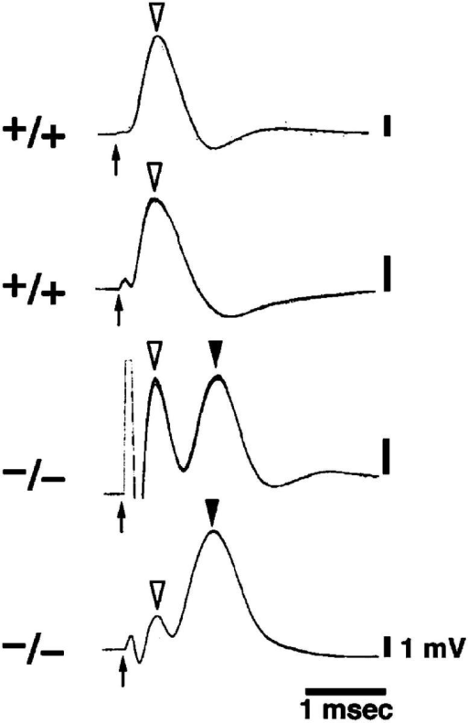Electrophysiological analysis of claudin-19–deficient mice. Sciatic nerves were isolated from 10-wk-old mice (n = 10 each for Cld19+/+ and Cld19−/− mice), and field potential recordings were made to measure the CAPs. The distance between extracellular stimulation and recording electrodes was 2.5 cm. When nerves were stimulated with sufficiently large currents to elicit maximal CAP amplitude, CAPs obtained from all Cld19+/+ mice demonstrated a single-peak, smooth waveform (open arrowheads; +/+). However, in 3 out of 10 Cld19−/− mice, CAPs showed a characteristic double-peak waveform: a peak around a normal conduction velocity (open arrowheads) and an additional delayed peak (closed arrowheads; −/−). Under the stimulus intensity to elicit half-maximal CAP amplitude, this double-peak CAP waveform was reproducibly detected in Cld19−/− mice, but never in Cld19+/+ mice (not depicted). Arrows, stimulation.
