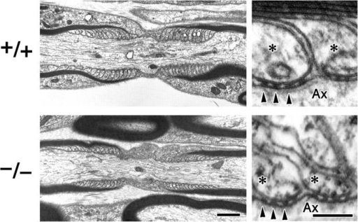 Overall morphology of the node of Ranvier of peripheral myelinated axons of claudin-19–deficient mice. Longitudinal sectional views of the node of Ranvier were compared by ultrathin section electron microscopy between Cld19+/+ and Cld19−/− saphenous nerves. The claudin-19 deficiency did not appear to affect the overall morphology of the node of Ranvier, including the paranodal region (left). At a higher magnification in the paranodal region of both Cld19+/+ and Cld19−/− axons, electron-dense transverse bands between terminal loops and axonal membranes were clearly observed (arrowheads). Asterisks, paranodal terminal loops; Ax, axon. Bars: (left) 1 μm; (right) 100 nm.