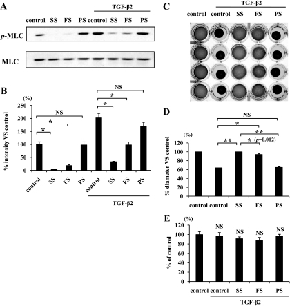 Comparison of inhibitory effects of simvastatin, fluvastatin, and pravastatin on TGF-β2–dependent MLC phosphorylation and collagen gel contraction. A: Starved hyalocytes were pretreated with vehicle, 5 μmol/l simvastatin, fluvastatin, or pravastatin for 30 min and subsequently treated with or without 3 ng/ml TGF-β2 for 24 h. Total cell lysates were subjected to Western blot analysis with an antibody against p-MLC. Lane loading differences were normalized by reblotting the membranes with an antibody against MLC. B: Signal intensity ratios (p-MLC to MLC) were expressed as percentage of intensity ratio of vehicle alone. *P < 0.05. C: Hyalocytes were embedded in type I collagen gels (n = 4). After starvation and pretreatment with vehicle, 5 μmol/l simvastatin, fluvastatin, or pravastatin for 24 h, the collagen gels were stimulated with 3 ng/ml TGF-β2. Five days after the stimulation, the gels were photographed. D: The diameter of the collagen gels was measured and expressed as percentage of the average diameter of control group. **P < 0.01, *P < 0.05; NS, not significant. E: The viable cell number in the collagen gels was counted to exclude the effect of cell growth or cytotoxicity on the collagen gel contraction or its inhibition. Five days after the treatment, the collagen gels were dissolved, and the cell suspension was collected. The viable cell number was counted with hemocytometer after trypan blue staining (n = 4; NS, not significant compared with control).