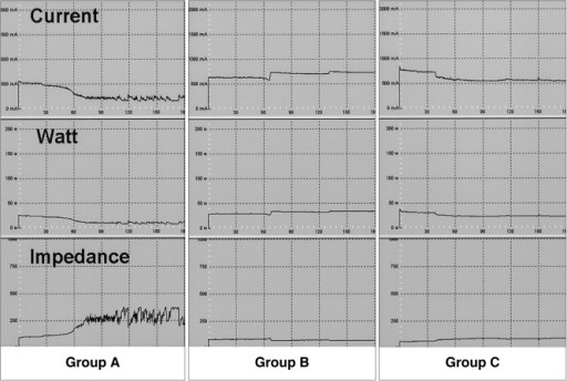 Graphic depiction of the changes occurring in tissue impedance, RF current and power during radiofrequency ablation in the four groups. Left: In a Group A rabbit, tissue impedance increased sharply and current decreased during RF energy instillation. Middle and Right: In Group B rabbits (middle) and those of Group C (right), an abrupt increase in tissue impedance after RF energy instillation was prevented by the infusion of NaCl solution.