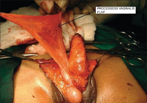 Testis brought in scrotum with processes vaginalis
