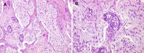 a & b Various components of the tumour in the form of heterogeneous admixture of glandular structures, nodules of neural tissue with neurofibrillary matrix and fibroblastic stroma, as seen in the resection specimen. (A-100×, B-200× Hematoxylin & Eosin)