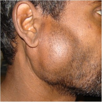 The right parotid swelling with level-II, level-V lymph node enlargement