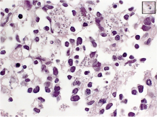 Transbronchial needle biopsy of a mediastinal lymph node showing histiocytes containing abundant Leishmania amastigotes (H-E × 1000). Insert shows a close-up view of an amastigote. Its ovoid shape, eccentric nucleus, and kinetoplast are discerned.
