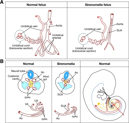 Vascular pattern in a normal versus sirenomelia fetus. (A) Schematic drawing of the fetal umbilical cord vasculature in a normal and a sirenomelia fetus. Note the abnormally high origin of the SUA in sirenomelia and the hypoplasia of the aorta caudal to its origin. (B) Left two panels: schematic of transverse sections at the caudal level of an early normal and sirenomelia embryo. Below each section, the corresponding vascular pattern is shown in red. Ao, dorsal aorta; rpAo, recurved distal portions of aorta; UA, umbilical arteries; UV, umbilical vein; SUA, single umbilical artery; VA, vitelline artery. Right panel: a schematic lateral view of an embryo in which the great caudal vessels are shown in red and the hindgut in yellow. The broken red line indicates the level of the sections shown in the two panels to the left.