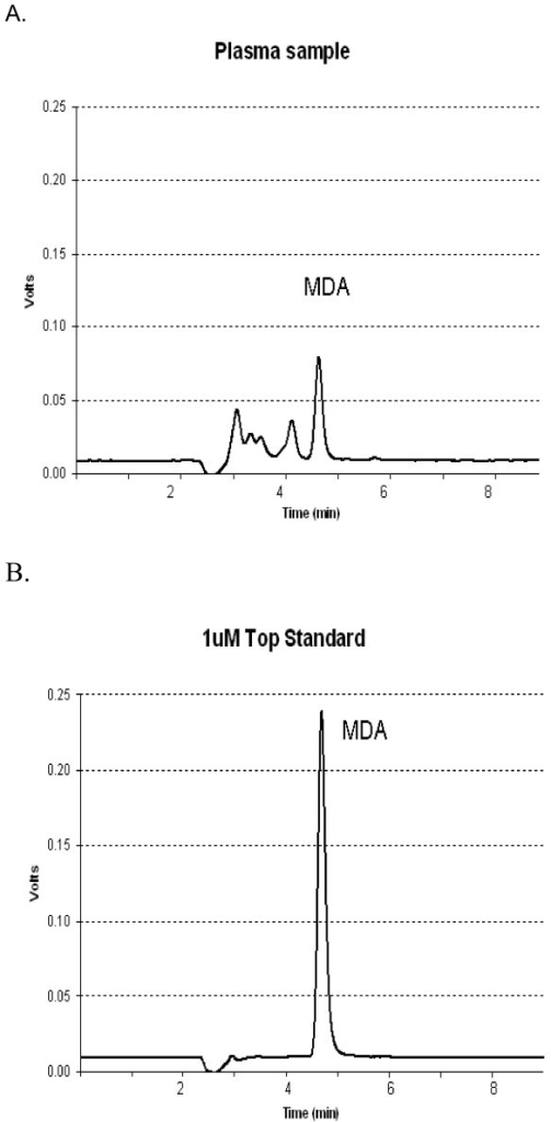 Typical chromatograms of (A) a plasma sample and (B) 1 μM malondialdehyde (MDA) standard.