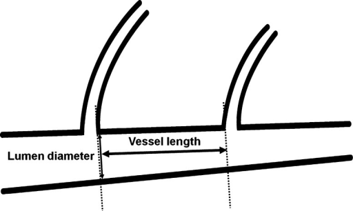 The definition of vessel length and luminal diameter. The vessel length was defined as the vessel segment length between the distal carina portion of the proximal side branch origin and the proximal carina portion of the distal side branch origin (thick arrow). The proximal luminal diameter was the vessel segment diameter at the point of the distal carina portion of the proximal side branch origin (thin arrow)