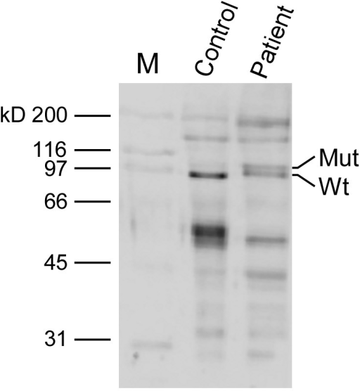Western blot analysis of skeletal muscle tissue with antibodies to TNPO3.Equal amounts of muscle proteins from a LGMD1F patient and a control were run in each lane (10 µg) on a 9% SDS-polyacrylamide gel and then blotted onto nitrocellulose membrane. In this experiment, we used a monoclonal antibody that recognizes a recombinant fragment (Human) near the N terminus of TNPO3 at a 1∶100 dilution. A double band is visible in the patient only.