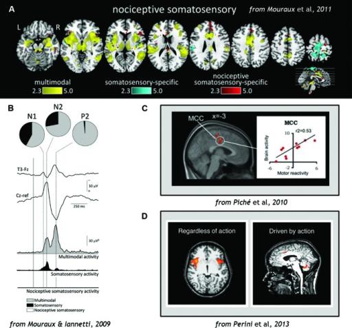 (A) Analysis of fMRI data comparing blood-oxygen-level-dependent (BOLD) responses to stimulation across sensory domains (vision, audition, somatosensation, and pain), indicating that multimodal activity accounts for most of the cortical network activation during pain (Wiech et al., 2010). (B) EEG results demonstrating that cortical responses to Aδ and C nociceptor activation by laser-evoked potential (LEP) stimulation reflects predominantly multimodal and to some extent somatosensory–specific activity, but limited nociceptive-specific activity (Fuster, 1991). (C) fMRI evidence demonstrating correlations in regions of midcingulate cortex (MCC) with individual motor reactivity in the spinal RIII reflex (top) and variance in autonomic arousal (bottom) during electrical pain stimulation (Bancaud et al., 1976). (D) fMRI evidence demonstrates that midcingulate but not anterior insula activations during pain are contingent on motor processing (Duerden and Albanese, 2013). Figures reproduced with permission.