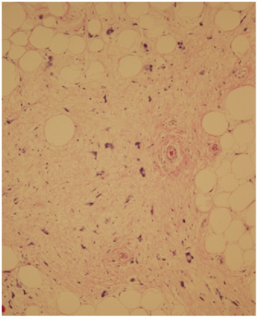 Light microscopy displays expanded hypercellular stroma with atypical adipocytes with enlarged nuclei and hyperchromasia.